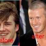 David-Beckham-teeth-before-and-after-david-beckham-16662642-1205-827