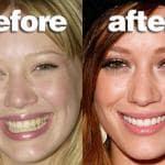 teeth_hilary