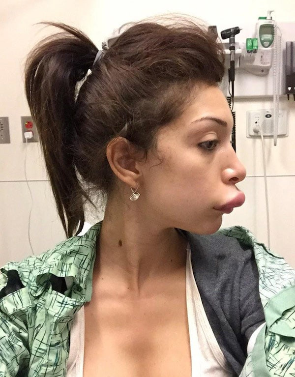Farrah_Abraham_plastic_surgery_lips