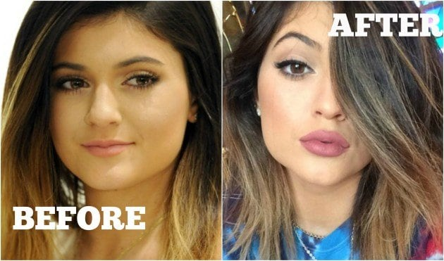 xbefore-and-after-kylie-jenner.jpg.pagespeed.ic.5W5-GLHLmM-TcCRz65kl