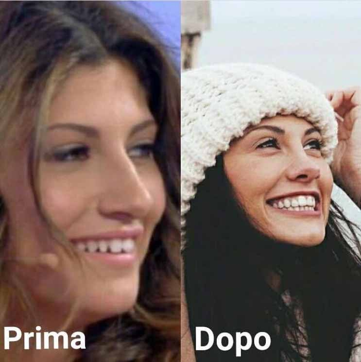 Giorgia Lucini Si è Rifatta Naso E Denti La Foto Prima E Dopo Bitchyf