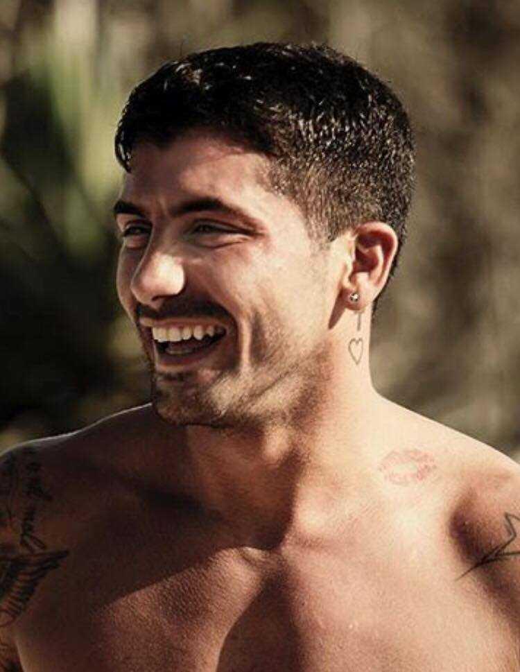 Alessio Bruno Temptation Island Botox