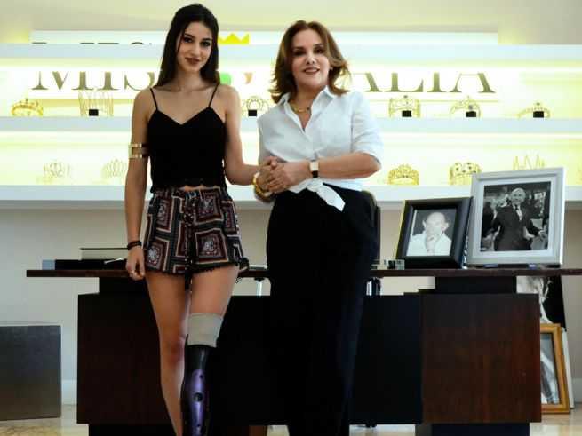 Chiara Bondi Miss Italia Protesi