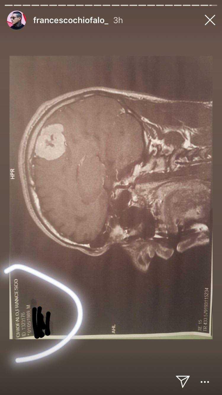 Francesco Chiofalo Tumore Cervello 5
