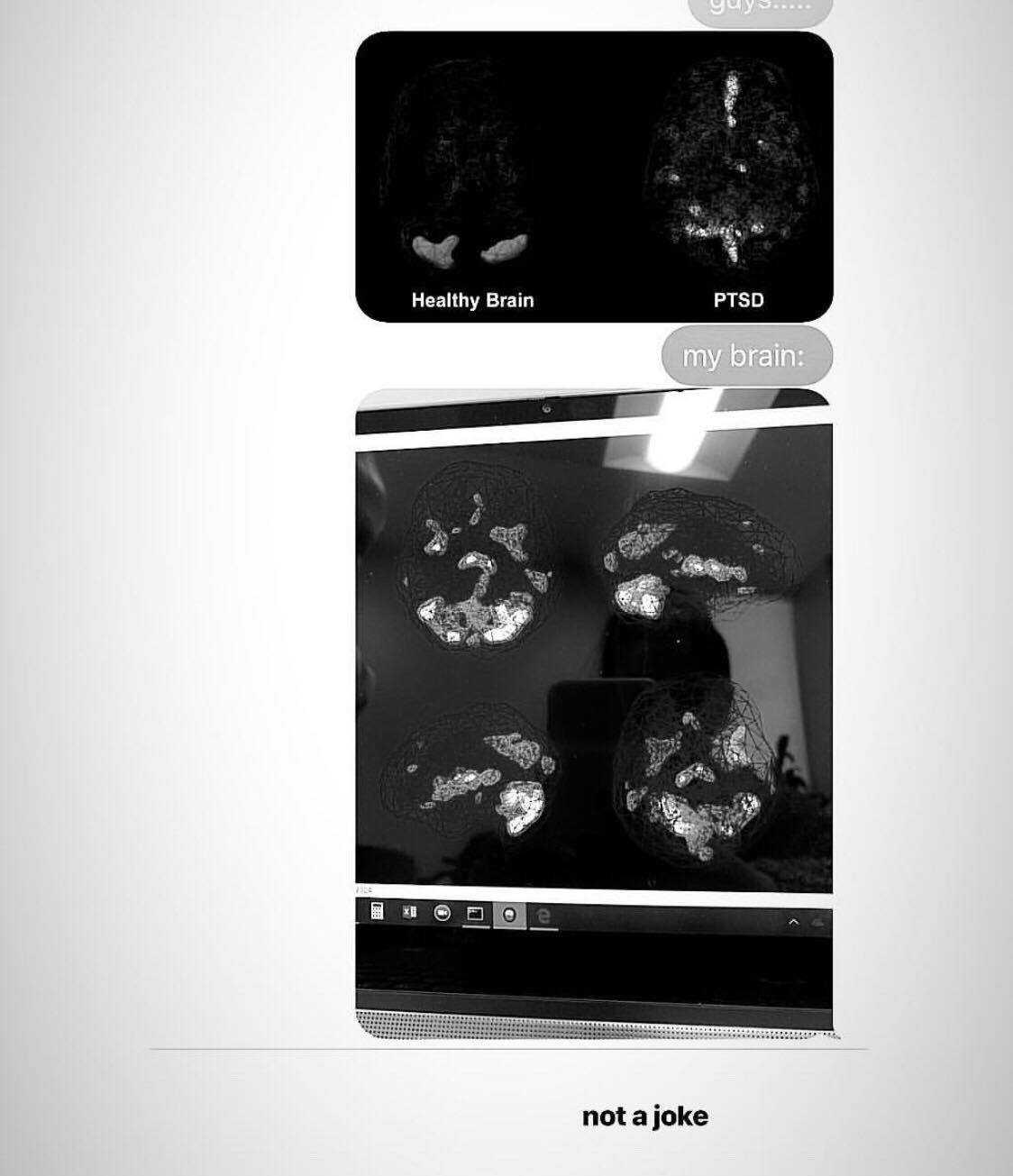 Ariana Grande e la radiografia choc al cervello dopo l'attentato di Manchester