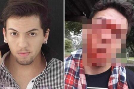 Omofobia Brasile aggressione gay ragazzo