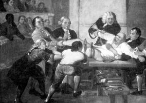 Robert Liston e le amputazioni