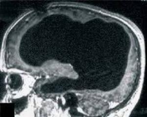 Risonanza cervello con liquido spinale