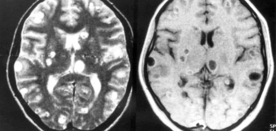 i parassiti hanno un cervello?