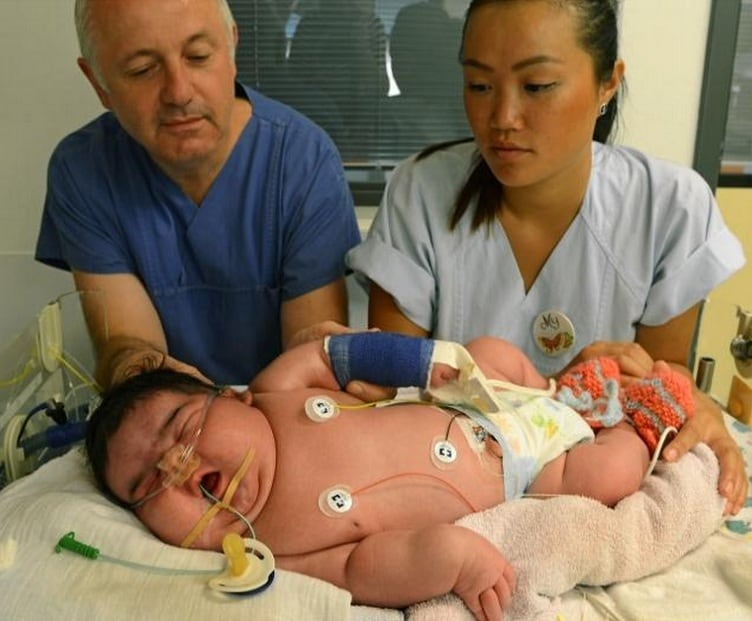 neonato di 6 kg 1