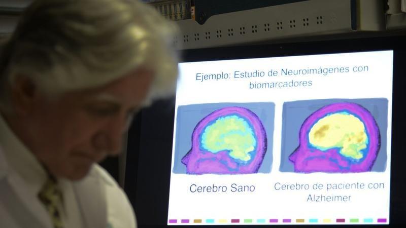 Cosa succede al cervello quando hai informazioni che non ti servono più?