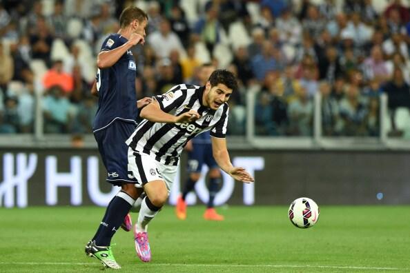 Udinese-Juventus diretta serie a