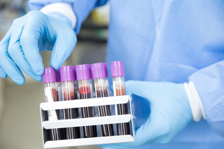 La possibilità di offrire un test sierologico nel pacchetto