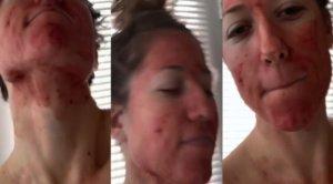 """Blood Influencer, si spalma il sangue del ciclo sul volto: """"Ecco perché lo faccio"""""""