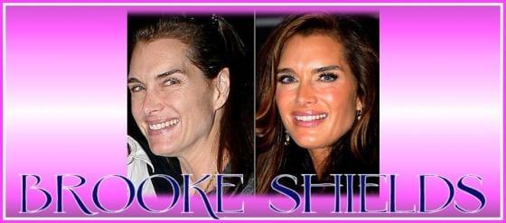 Smacchiavip Brooke Shields