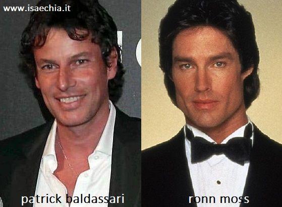 Somiglianza tra Patrick Baldassari e Ronn Moss