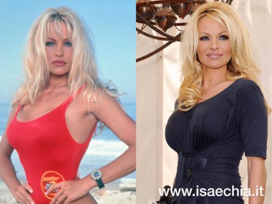 Pamela Anderson - Casey Jean Parker