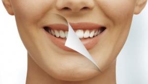 denti-bianchi