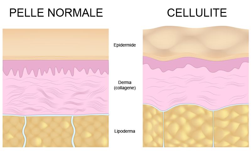 cellulite adiposità