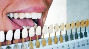 Denti-bianchi-colori