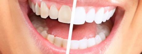 denti-bianchi-650x250