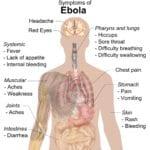 ebola epidemia sintomi virus