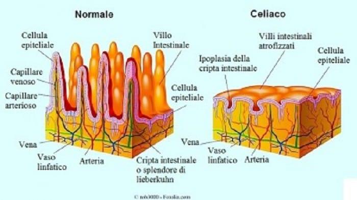 celiachia 1