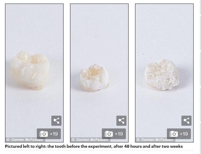 sun daily mail prosecco denti sbriciolati - 1