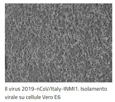 spallanzani coronavirus isolato fondi - 5