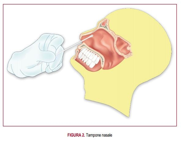 tampone nasale epicentro 2