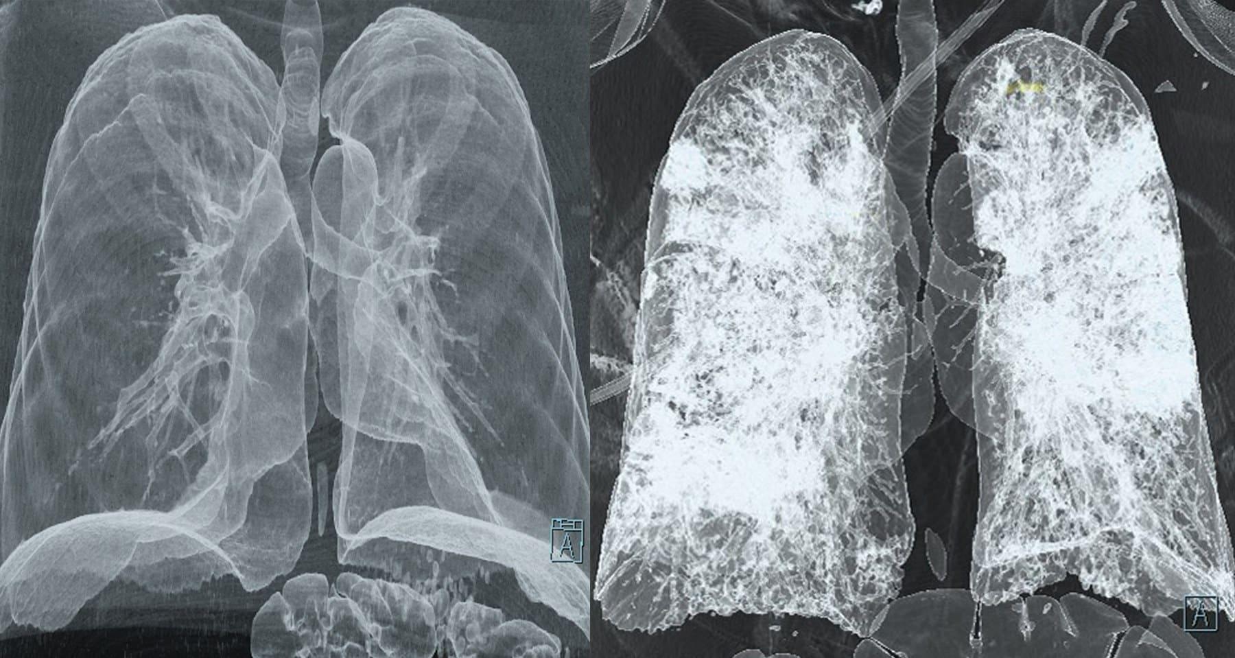 polmoni prima e dopo covid 19