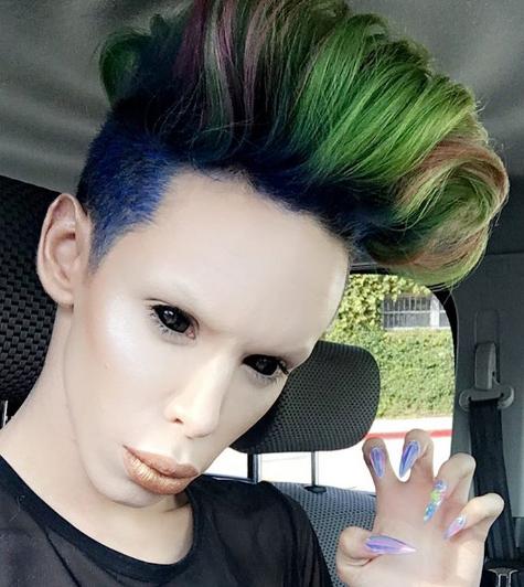 vinny ohh alieno senza sesso operazioni chirurgiche - 1
