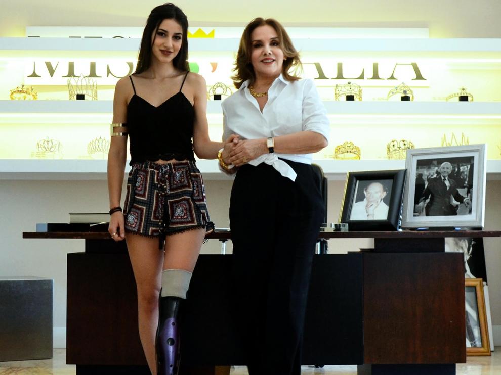 chiara bondi protesi miss italia