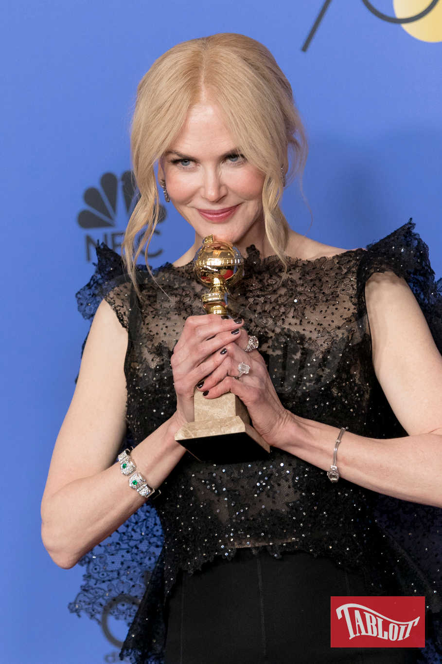 """Nicole Kidman ha vinto il premio come miglior attrice di una miniserie per """"Big Little Lies"""""""