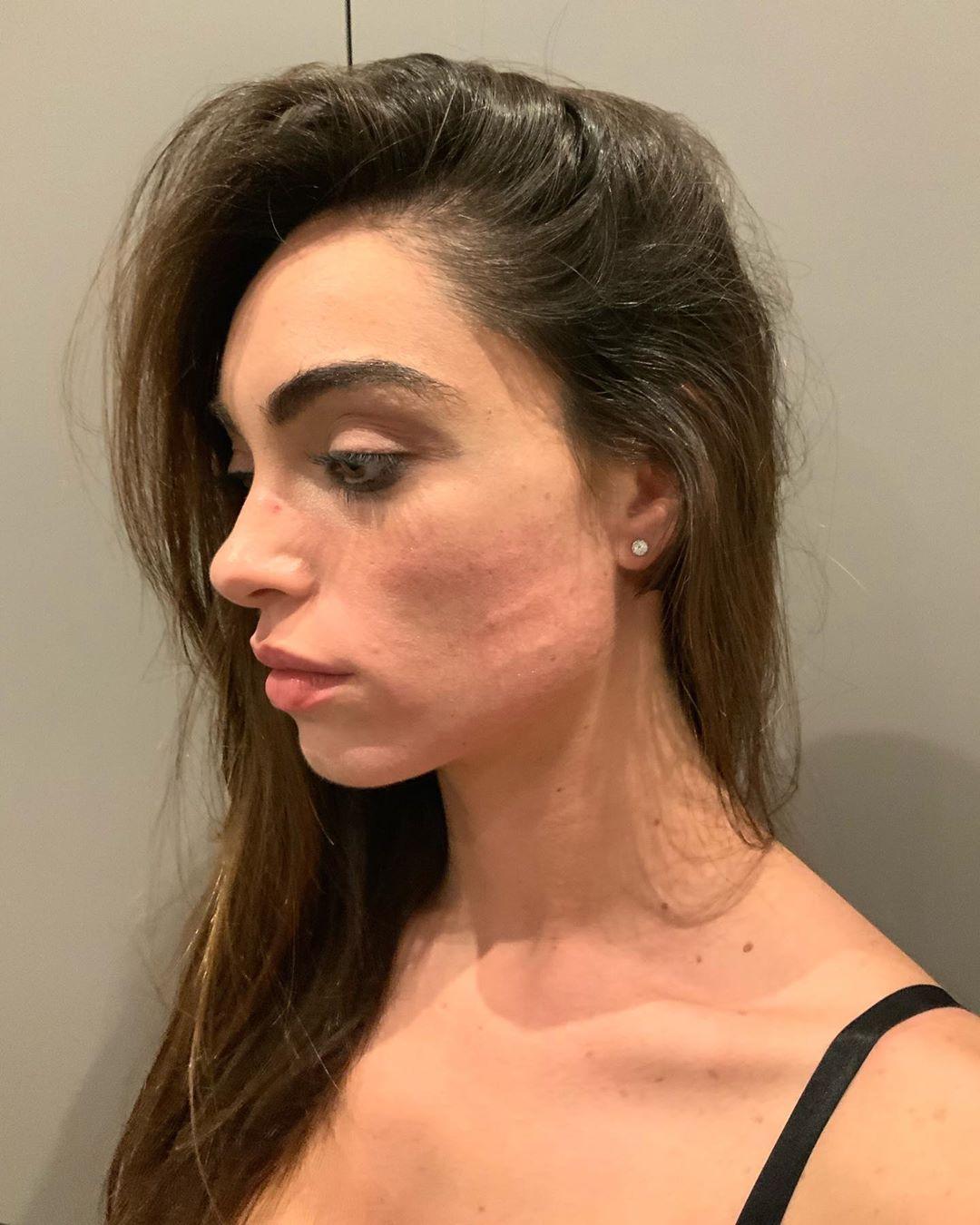 La foto pubblicata su Instagram da Lorella Boccia che mostra i segni dell'aggressione