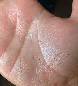 skin gritting punti neri